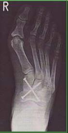 Meine acht Fußoperationen! Hallux Valgus und Irrwege Teil 2